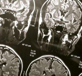 Scanner Cerebral