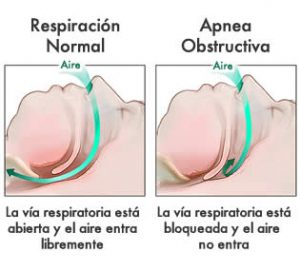 Anatomía Apnea