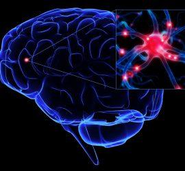 Cerebro PArkinson