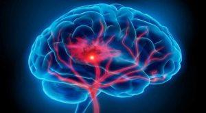 Cerebro Dañado
