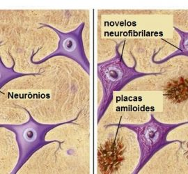 Neuronas y placas