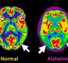 Scanner Cerebro